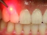 lasersurgery