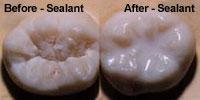 toothsealants2